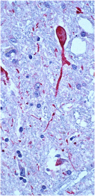 Brain tissue from a West Nile encephalitis patient, showing antigen-positive neurons and neuronal processes (in red).
