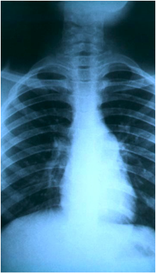 X-ray photo of the lungs of a patient with tuberculosis.